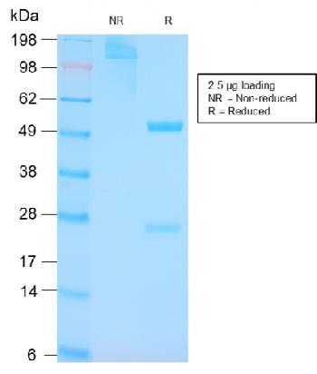 Anti-p53 Tumor Suppressor Protein Monoclonal Antibody(Clone: TP53/3156R)