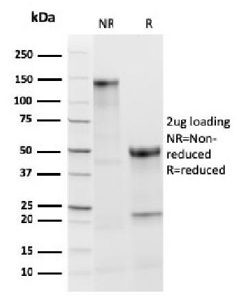 Anti-TPO (Thyroid Peroxidase) (Thyroid Marker) Monoclonal Antibody(Clone: TPO/3813R)