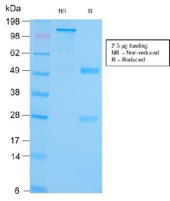 Anti-GRP94 / HSP90B1 (Endoplasmic Reticulum Marker) Monoclonal Antibody(Clone: HSP90B1/3168R)