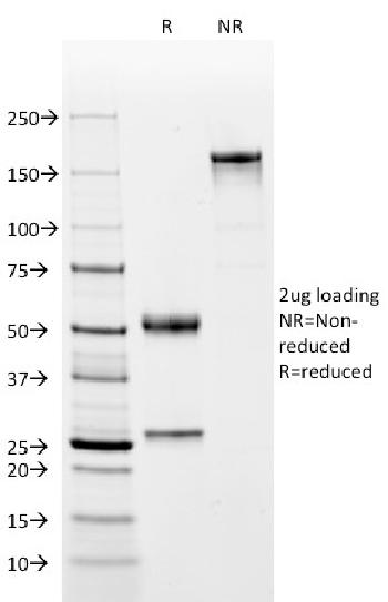 Anti-Complement 4d (C4d) (Acute Humoral Rejection Marker) Monoclonal Antibody(Clone: C4D204)