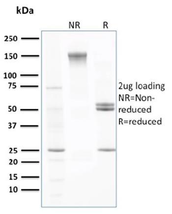 Anti-Transthyretin (Prealbumin) Monoclonal Antibody(Clone: CPTC-TTR-1)