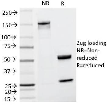 Anti-Tyrosinase-Related Protein-1 (TYRP-1) (Melanoma Marker) Monoclonal Antibody(Clone: TA99)