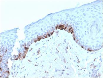 Anti-Tyrosinase-Related Protein-1 (TYRP-1) (Melanoma Marker) Monoclonal Antibody(Clone: TYRP1/3282)