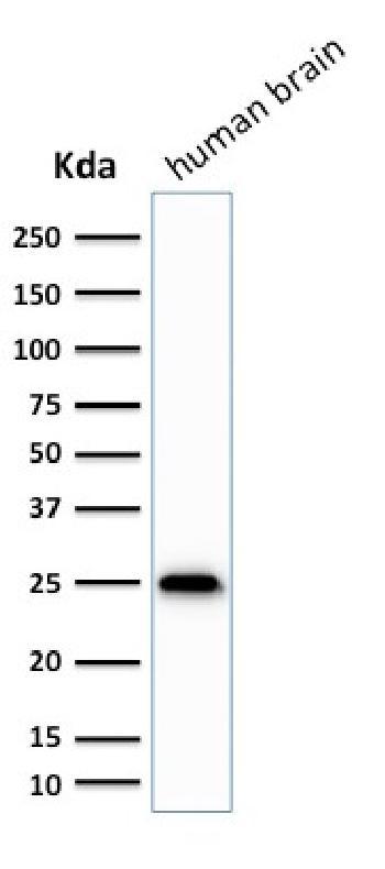 Anti-PGP9.5 / UchL1 Monoclonal Antibody(Clone: SPM575)