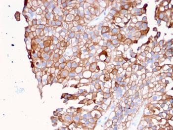Anti-Uroplakin 1B (Urothelial Differentiation Marker) Monoclonal Antibody(Clone: UPK1B/3081)