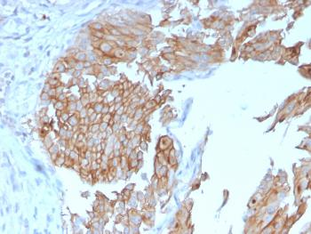 Anti-Uroplakin 1B (Urothelial Differentiation Marker) Monoclonal Antibody(Clone: UPK1B/3102)
