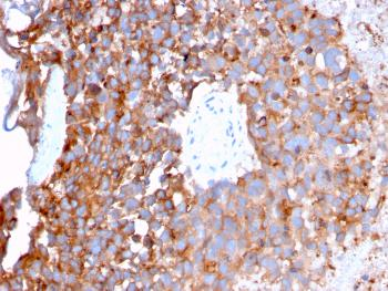 Anti-Uroplakin 1B (Urothelial Differentiation Marker) Monoclonal Antibody(Clone: UPK1B/3273)