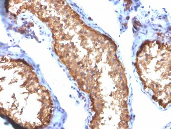 Anti-Vinculin (Marker of Age-related Macular Degeneration) Monoclonal Antibody(Clone: VCL/2572)