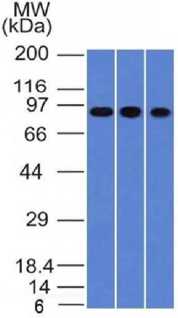Anti-Villin (GI-Mucosal & Urogenital Brush Border Marker) Monoclonal Antibody(Clone: VIL1/1314)