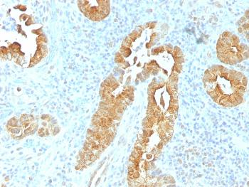 Anti-Villin (GI-Mucosal & Urogenital Brush Border Marker) Monoclonal Antibody(Clone: VIL1/1325)