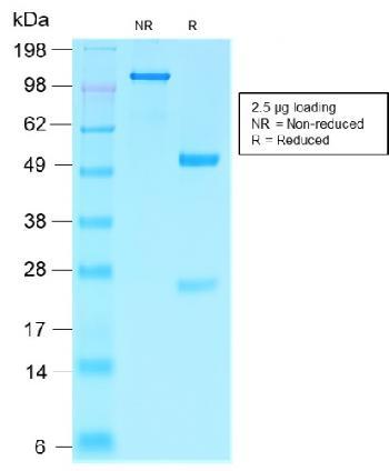 Anti-Villin (GI-Mucosal & Urogenital Brush Border Marker) Monoclonal Antibody(Clone: VIL1/2310R)