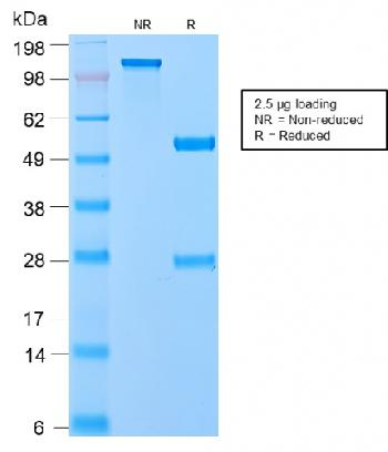 Anti-VLDL-Receptor (Very Low Density Lipoprotein Receptor) Monoclonal Antibody(Clone: VLDLR/2896R)