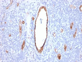 Anti-von Willebrand Factor / Factor VIII Related-Ag (Endothelial Marker) Monoclonal Antibody(Clone: rVWF/2480)