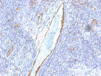 Anti-von Willebrand Factor / Factor VIII Related-Ag (Endothelial Marker) Monoclonal Antibody(Clone: F8/86)