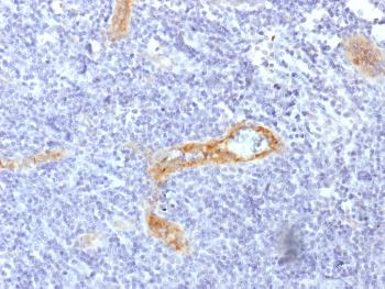 Anti-von Willebrand Factor / Factor VIII Related-Ag (Endothelial Marker) Monoclonal Antibody(Clone: rVWF/1465)