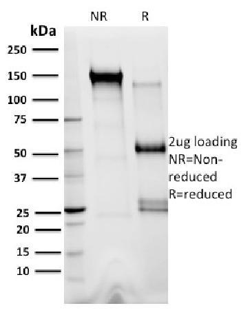 Anti-XRCC3 Monoclonal Antibody(Clone: 10F1/6)