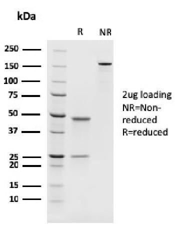 Anti-PAX8 (Renal Cell Marker) Monoclonal Antibody(Clone: rPAX8/1492)