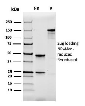 Anti-Calbindin 1 (CALB1) Monoclonal Antibody(Clone: CALB1/2364)