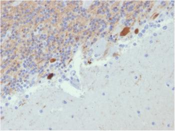 Anti-Calretinin / Calbindin 2 (Mesothelioma Marker) Monoclonal Antibody(Clone: CALB2/2807)