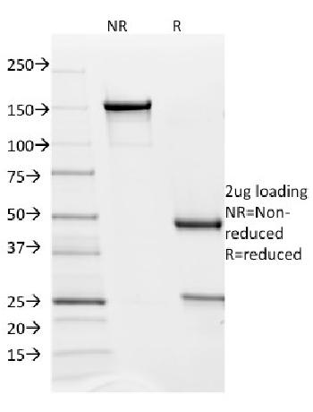 Anti-PD-L2 / PDCD1LG2 / CD273 Monoclonal Antibody(Clone: PDL2/1850)