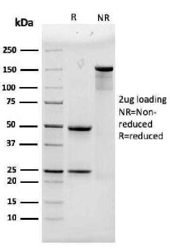 Anti-Alpha Actinin 4 / ACTN4 Monoclonal Antibody(Clone: 93)