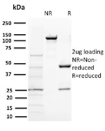 Anti-BAP1 (BRCA1 Associated Protein 1) Monoclonal Antibody(Clone: BAP1/2431)