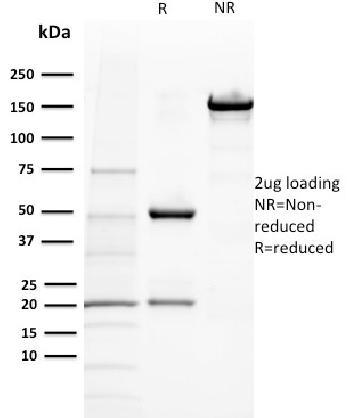 Anti-BAP1 (BRCA1 Associated Protein 1) Monoclonal Antibody(Clone: BAP1/2432)