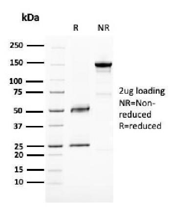 Anti-BAP1 (BRCA1 Associated Protein 1) Monoclonal Antibody(Clone: BAP1/2667)