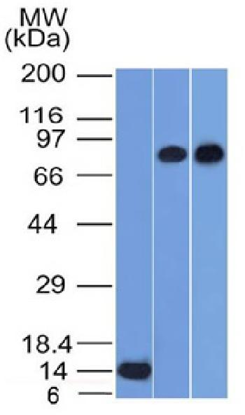 Anti-p63 (Squamous, Basal & Myoepithelial Cell Marker) Monoclonal Antibody(Clone: TP63/1786)