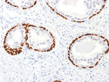Anti-p63 (Squamous, Basal & Myoepithelial Cell Marker) Polyclonal Antibody