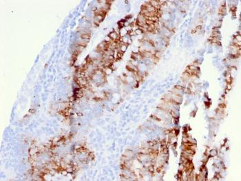 Anti-CD262 / DR5 Monoclonal Antibody(Clone: DR5/3381)