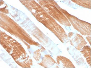 Anti-Sarcomeric Actinin Alpha 2 / ACTN2 Monoclonal Antibody(Clone: ACTN2/3291)