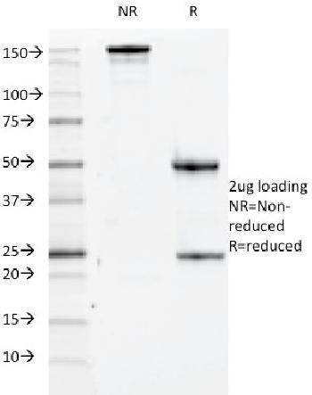 Anti-CD84 / SLAMF5 Monoclonal Antibody(Clone: 152-1D5)