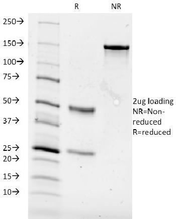 Anti-CD84 / SLAMF5 Monoclonal Antibody(Clone: 153-4D9)