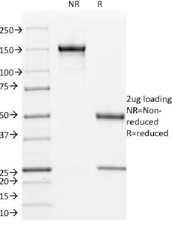 Anti-Cyclin B1 (G2- & M-phase Cyclin) Monoclonal Antibody(Clone: V92.1)