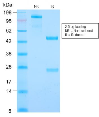 Anti-Cyclin B1 (G2- & M-phase Cyclin) Monoclonal Antibody(Clone: CCNB1/2978R)(Discontinued)
