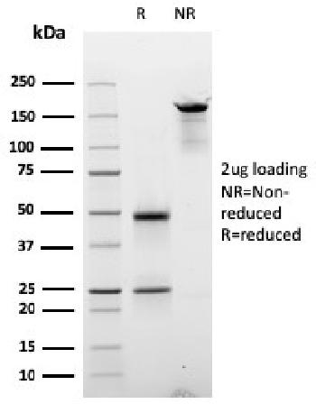 Anti-Cyclin E (G1/S-Phase Cyclin) Monoclonal Antibody(Clone: CCNE1/2587)