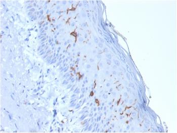 Anti-CD1a / HTA1 (Mature Langerhans Cells Marker) Monoclonal Antibody(Clone: rC1A/711)