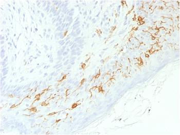Anti-CD1a / HTA1 (Mature Langerhans Cells Marker) Monoclonal Antibody(Clone: C1A/1506R)