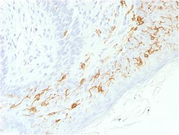Anti-CD1a / HTA1 (Mature Langerhans Cells Marker) Monoclonal Antibody(Clone: C1A/1506R)