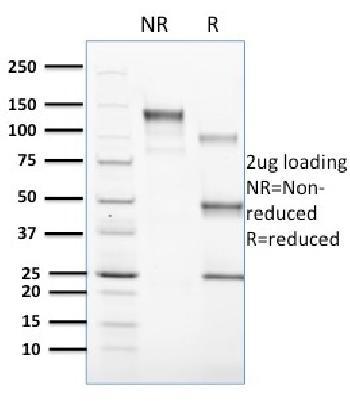 Anti-CD1c Monoclonal Antibody(Clone: CD1C/1603)