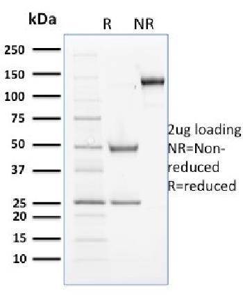 Anti-Cyclin B2 Monoclonal Antibody(Clone: X29.2)