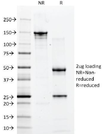 Anti-CD2 / Lymphocyte Function Antigen 2 (LFA-2) Monoclonal Antibody(Clone: 1E7E8.G4)