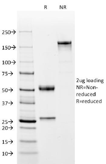 Anti-CD2 / Lymphocyte Function Antigen 2 (LFA-2) Monoclonal Antibody(Clone: BH1)