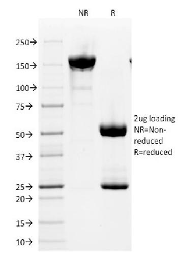 Anti-CD2 / Lymphocyte Function Antigen 2 (LFA-2) Monoclonal Antibody(Clone: HuLy-m1)