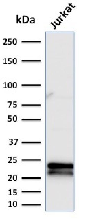 Anti-CD3e (T-Cell Marker) Monoclonal Antibody(Clone: C3e/2479)