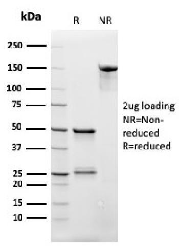 Anti-CD3e (T-Cell Marker) Monoclonal Antibody(Clone: rC3e/2479)