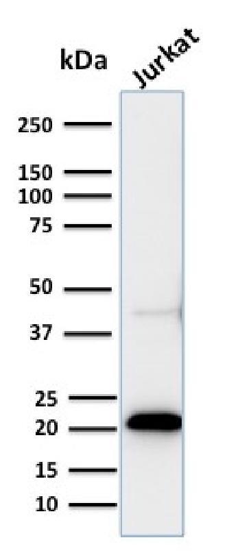 Anti-CD3e (T-Cell Marker) Monoclonal Antibody(Clone: C3e/2858R)