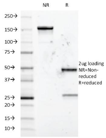 Anti-CD5 (Mantle Cell Lymphoma Marker) Monoclonal Antibody(Clone: B-B8)