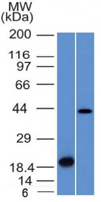 Anti-Aurora B (Proliferation Marker) Monoclonal Antibody(Clone: AURKB/1521)